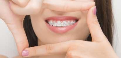 ¿Qué son las corticotomías, para qué sirven y qué ventajas tienen en ortodoncia?