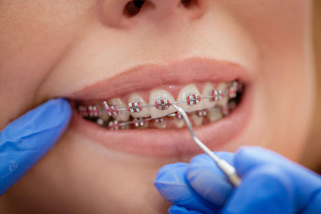 Clínicas Den - Todos los tipos de ortodoncia en Clínica Den