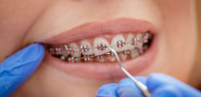 Todos los tipos de ortodoncia en Clínica Den