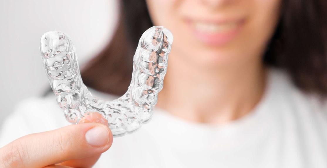 Ortodoncia Invisible - Clínica dental en Barcelona