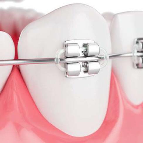 Clinicas Den - Servicios - Ortodoncia Brackets