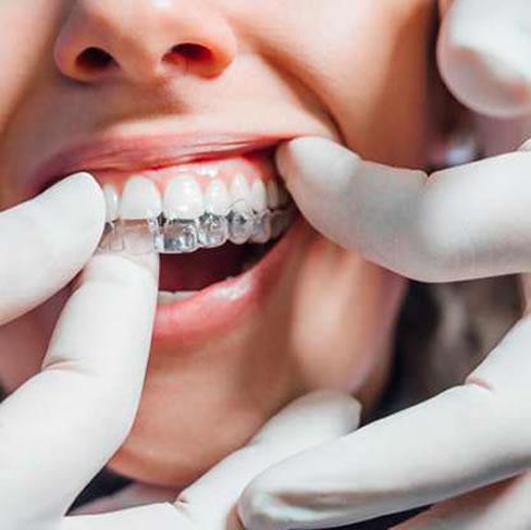 Clinicas Den - Servicios - Ortodoncia Invisible
