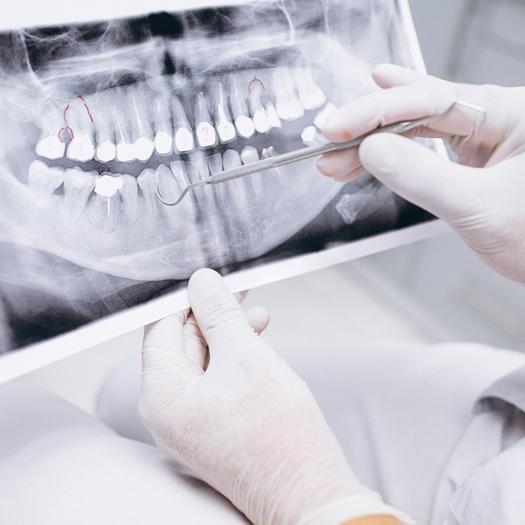 Clinicas Den - Cirugia Oral y Maxilofacial en Barcelona - Implantes Dentales 2