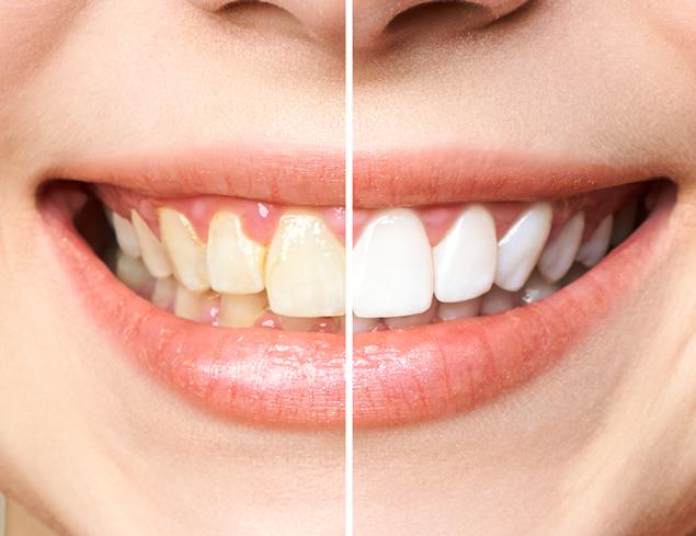 Clinicas Den - Estetica Dental Home