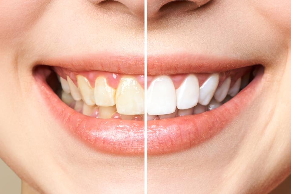Clinicas Den - Estetica Dental