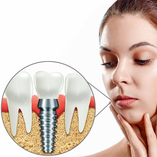 Clinicas Den - Implantes Dentales - Regeneracion Osea