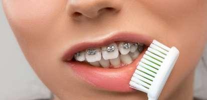 ¿Cómo hay que cepillarse los dientes con brackets? Trucos y consejos profesionales