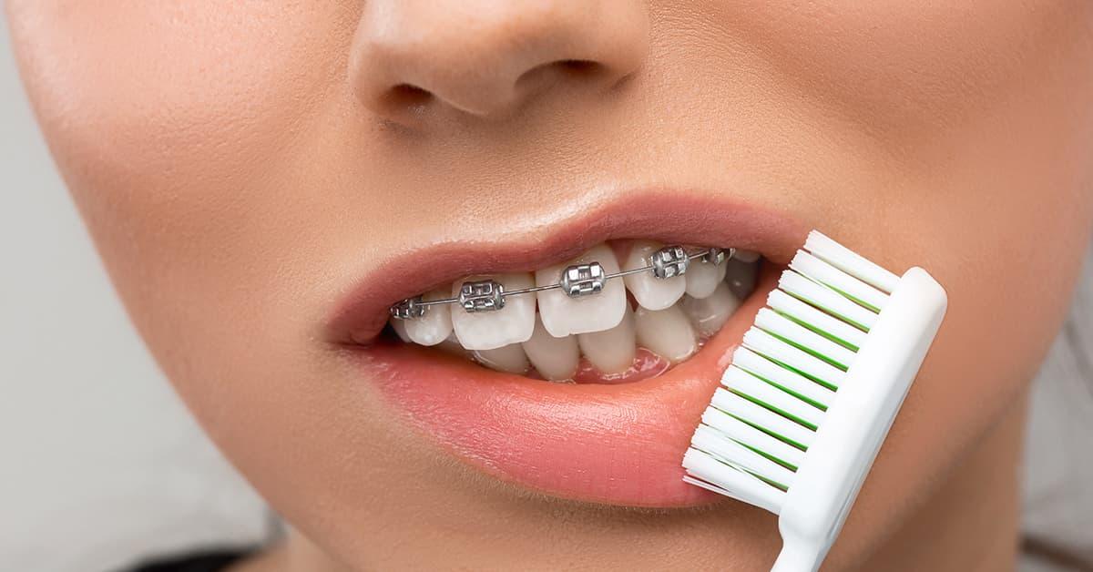 Clínicas Den - ¿Cómo hay que cepillarse los dientes con brackets? Trucos y consejos profesionales