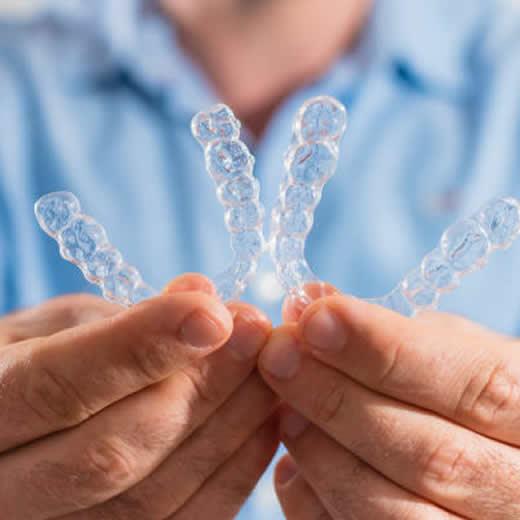 Clinicas DEN - Ortodoncia Invisible - Tratamiento de bajo grado de complejidad