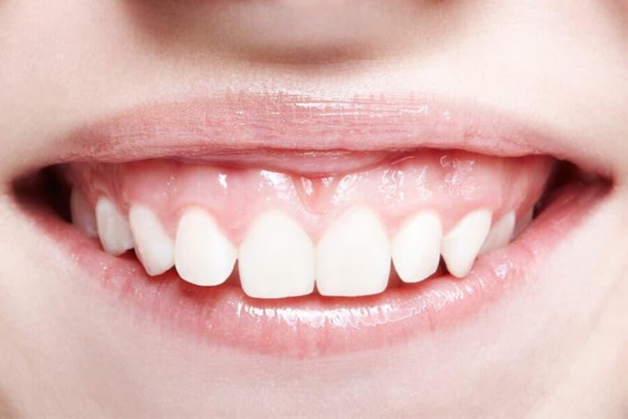 causas sonrisa gingival