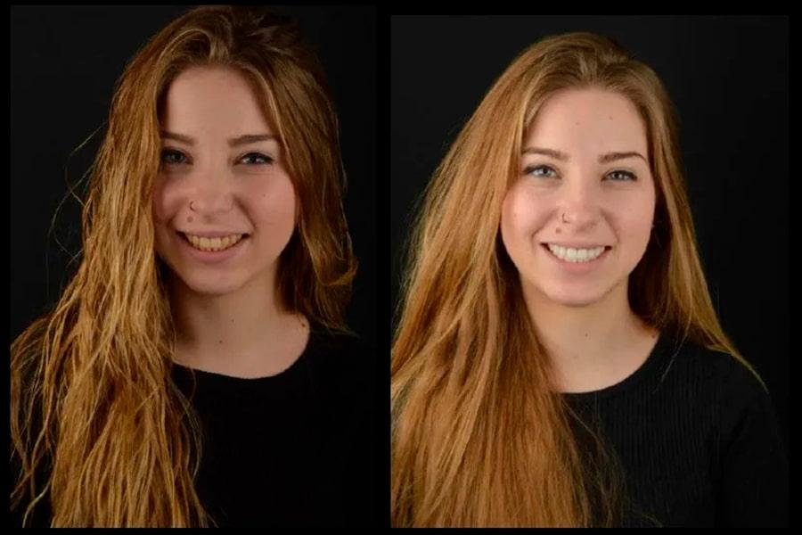 antes y despues de un blanqueamiento dental
