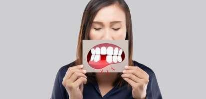 ¿Qué es la piorrea o periodontitis y cuáles son sus síntomas y tratamientos?