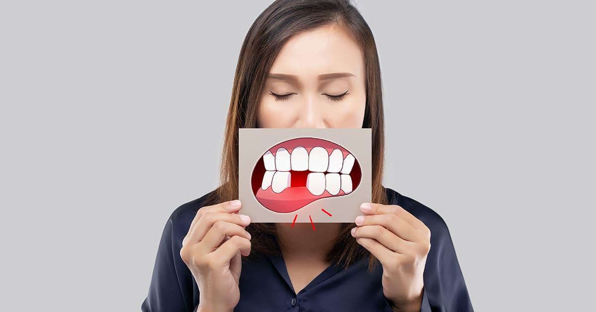 Clínicas Den - ¿Qué es la piorrea o periodontitis y cuáles son sus síntomas y tratamientos?