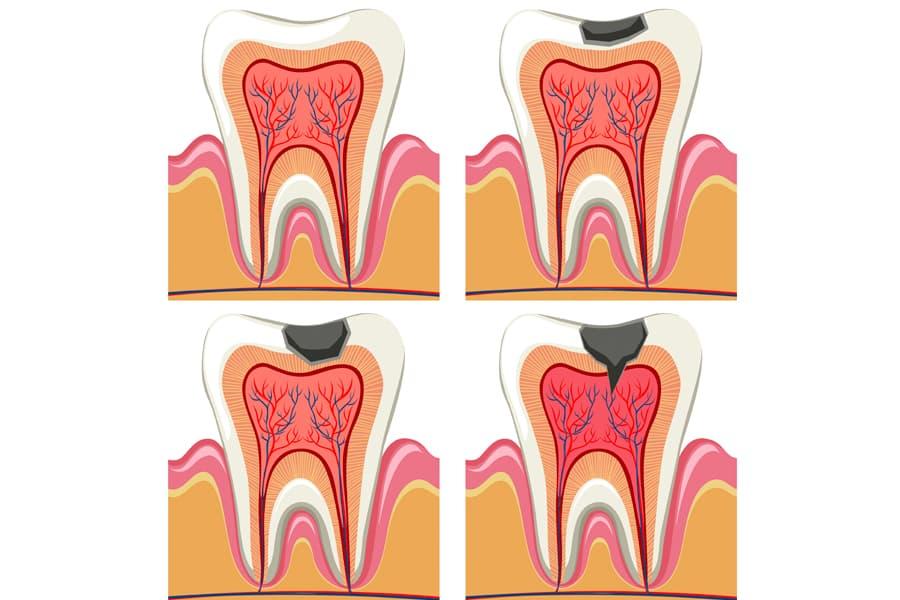 diente picado