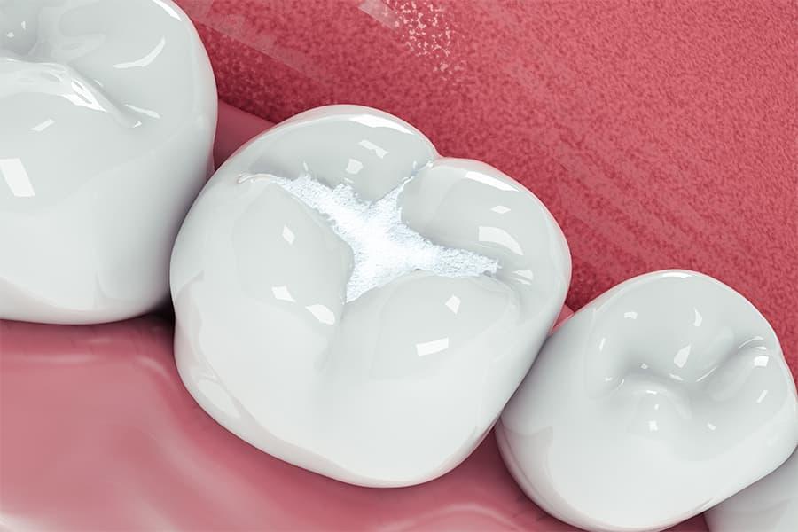 empaste por diente podrido