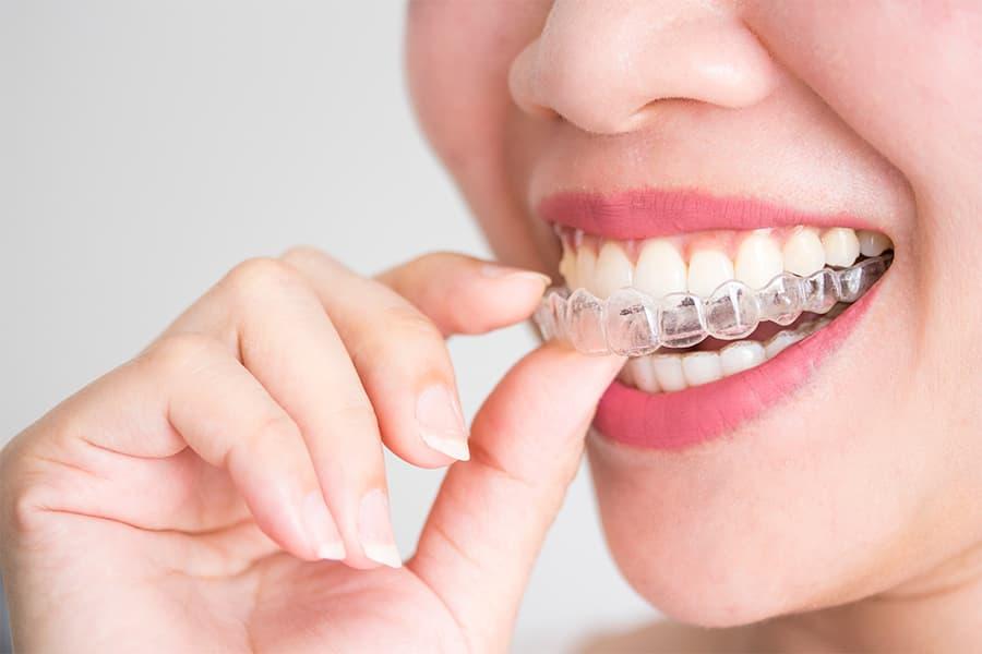 aparato dental invisible