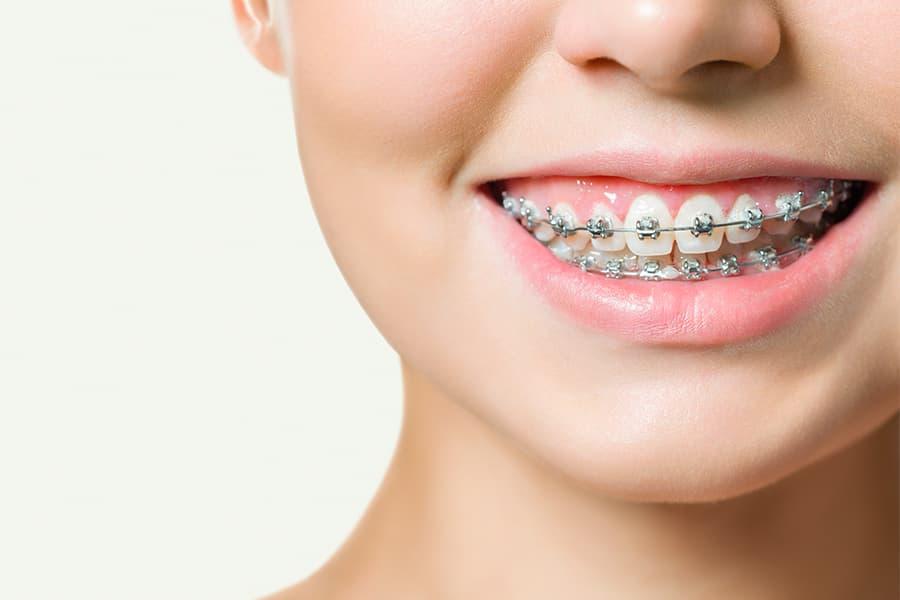 mordida cruzada ortodoncia