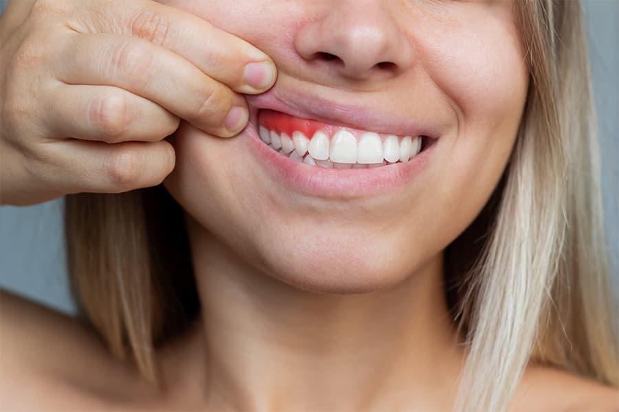 molestias dentales