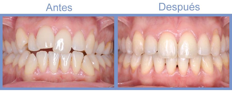 ortodoncia invisible antes y después